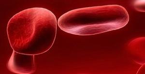 Limpiezas Traumáticas con Sangre
